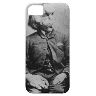 "Joseph ""John"" Merrick The Elephant Man from 1889 iPhone SE/5/5s Case"