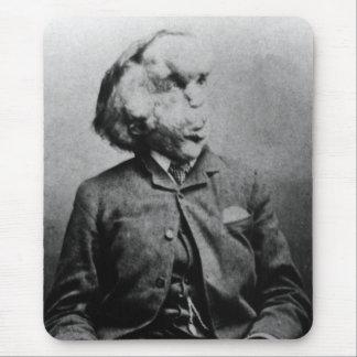 """Joseph """"John"""" Merrick The Elephant Man from 1889 Mouse Pad"""