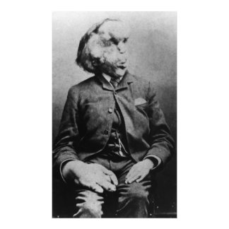 "Joseph ""John"" Merrick The Elephant Man from 1889 Photo Print"