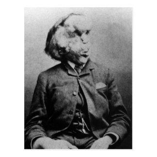 "Joseph ""John"" Merrick The Elephant Man from 1889 Postcard"