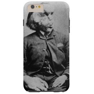 "Joseph ""John"" Merrick The Elephant Man from 1889 Tough iPhone 6 Plus Case"