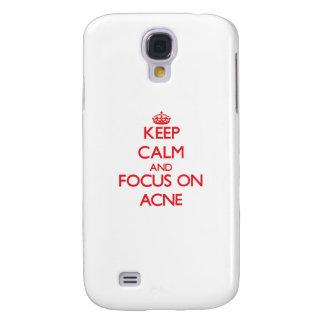 Keep calm and focus on ACNE Samsung Galaxy S4 Cases