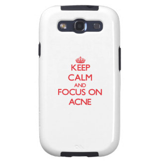 Keep calm and focus on ACNE Galaxy S3 Covers