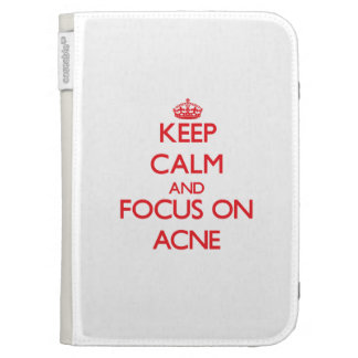 Keep calm and focus on ACNE Kindle 3 Cover