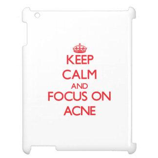 Keep calm and focus on ACNE iPad Covers