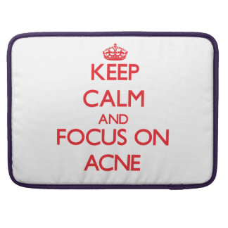 Keep calm and focus on ACNE Sleeves For MacBook Pro