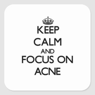 Keep Calm And Focus On Acne Square Stickers