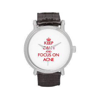 Keep calm and focus on ACNE Wristwatch