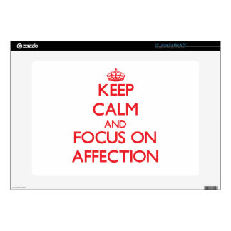 """Keep calm and focus on AFFECTION Skin For 15"""" Laptop"""
