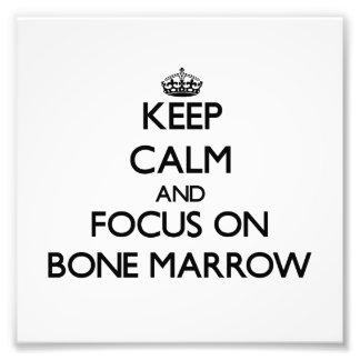 Keep Calm and focus on Bone Marrow Photo