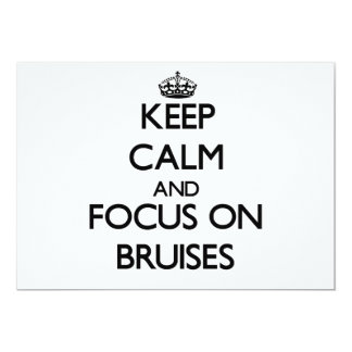 Keep Calm and focus on Bruises Announcements