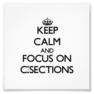 Keep Calm and focus on C-Sections Photo