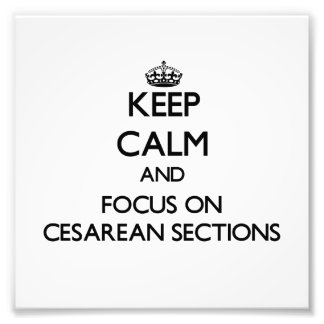 Keep Calm and focus on Cesarean Sections Photo Art