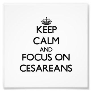 Keep Calm and focus on Cesareans Photo Print