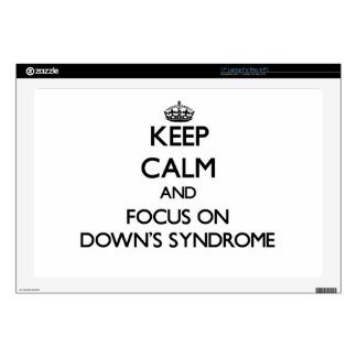 Keep Calm and focus on Down's Syndrome Laptop Decals