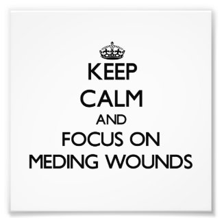 Keep Calm and focus on Meding Wounds Photo Print