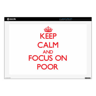 Keep Calm and focus on Poor Skin For Laptop