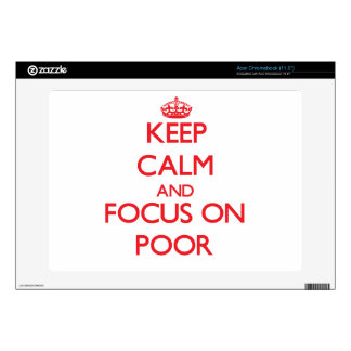 Keep Calm and focus on Poor Decal For Acer Chromebook