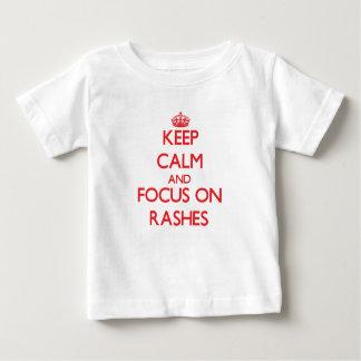 Keep Calm and focus on Rashes Tee Shirts