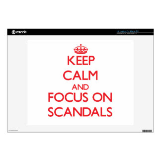 Keep Calm and focus on Scandals Laptop Skins