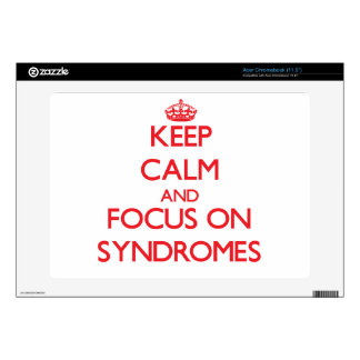 Keep Calm and focus on Syndromes Acer Chromebook Skin