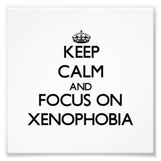 Keep Calm and focus on Xenophobia Photograph