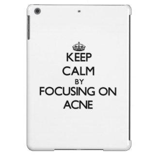 Keep Calm by focusing on Acne iPad Air Cases