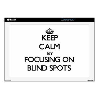 Keep Calm by focusing on Blind Spots Skins For Laptops