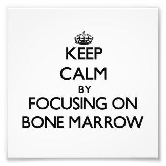 Keep Calm by focusing on Bone Marrow Photo