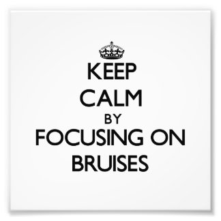 Keep Calm by focusing on Bruises Photographic Print