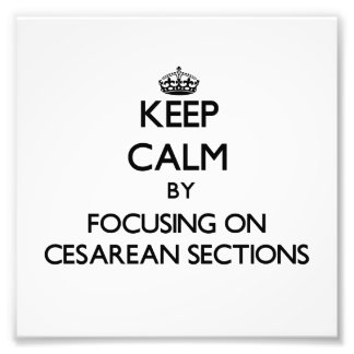 Keep Calm by focusing on Cesarean Sections Photograph