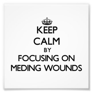 Keep Calm by focusing on Meding Wounds Photographic Print