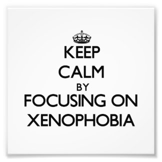 Keep Calm by focusing on Xenophobia Photograph