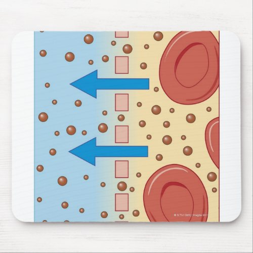 Kidney Dialysis Mouse Pad