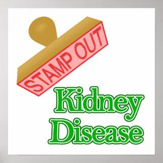 Kidney Disease Posters