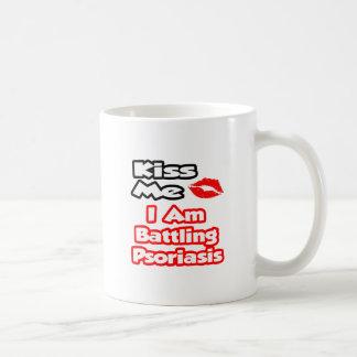 Kiss Me...I Am Battling Psoriasis Classic White Coffee Mug