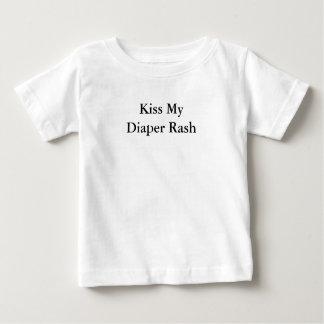 Kiss My Diaper Rash Tee Shirts