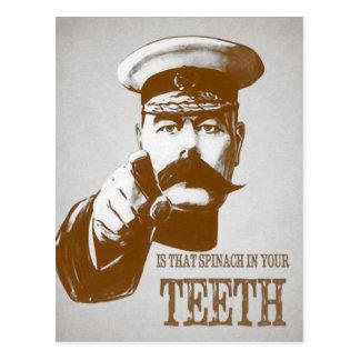 Kitchener - es esa espinaca en sus dientes