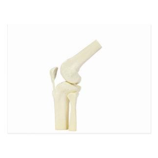 Knee joint model of human leg postcard