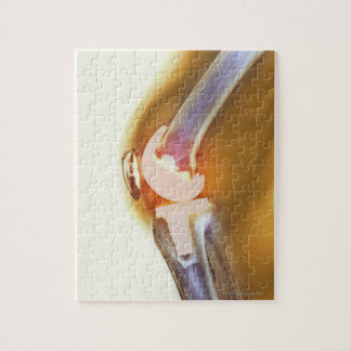 Knee replacement. Coloured X-ray of a total knee Jigsaw Puzzle