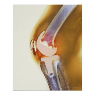Knee replacement. Coloured X-ray of a total knee Poster