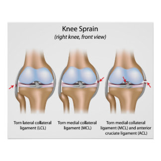 Knee sprain Poster