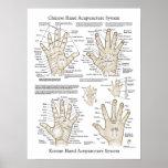 La acupuntura de la mano señala el poster de la te