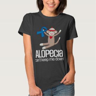 La alopecia no me conseguirá abajo de ayuda de la remeras