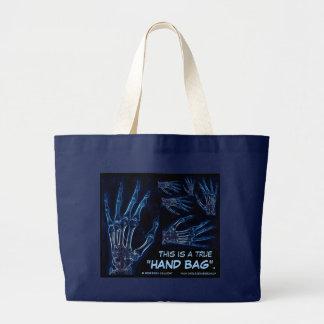 La bolsa de asas azul de la radiografía de la mano