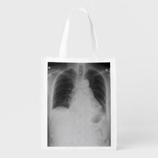 La bolsa de poliéster del ~ del rayo del pecho X Bolsas Para La Compra