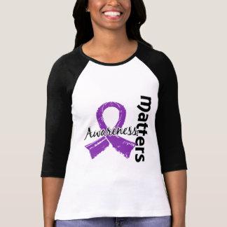 La conciencia importa malformación de 7 Chiari Camisetas