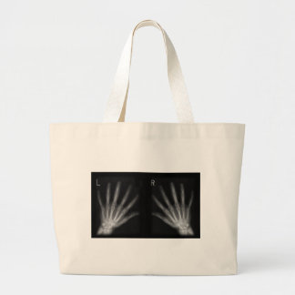 La derecha adicional y manos izquierdas de la bolsa tela grande