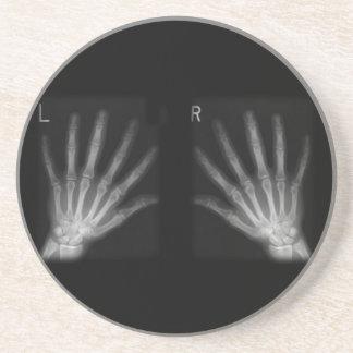 La derecha adicional y manos izquierdas de la radi posavaso para bebida