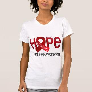 La esperanza importa 2 SIDA Camisetas